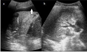 Diagnostic Value of Ultrasound in Detecting Causes of Pediatric Chest X-Ray Opacity